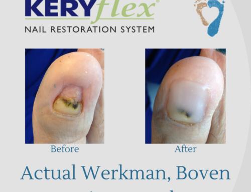Cosmetically Enhancing Damaged Nails with KeryFlex