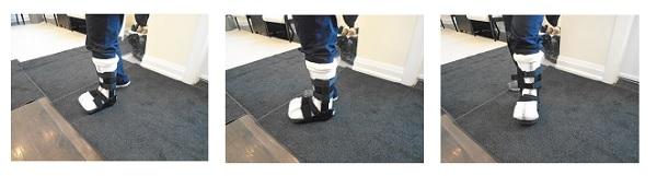 Foot Ulcers & Wounds | Werkman, Boven & Associates