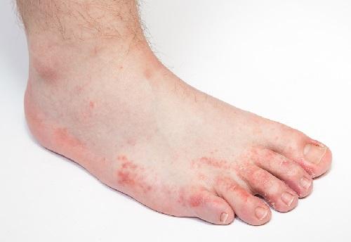 Fungal Foot Infections | J. Richard Werkman Chiropodist